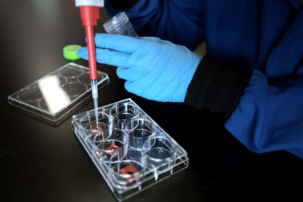 Pipetting hydrogel into molds